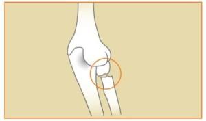 Radial-Neck-Break-Arm