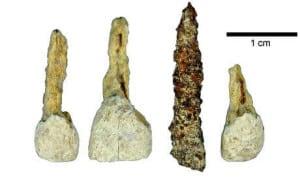 dental-history